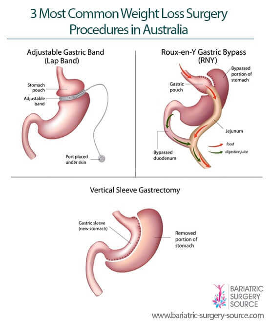 weight loss surgery australia