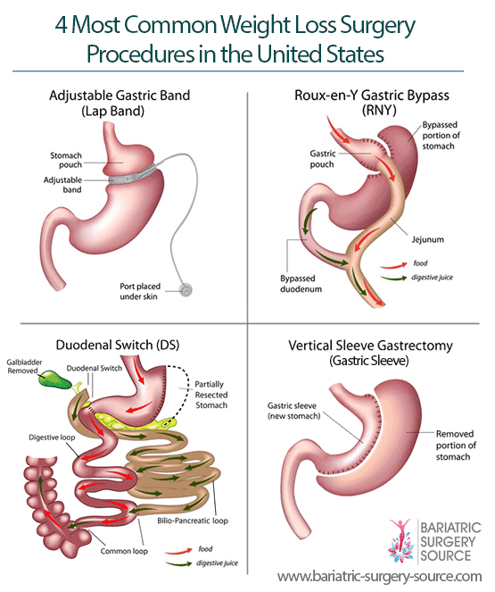 Most Common Weight Loss Surgery Procedures United States