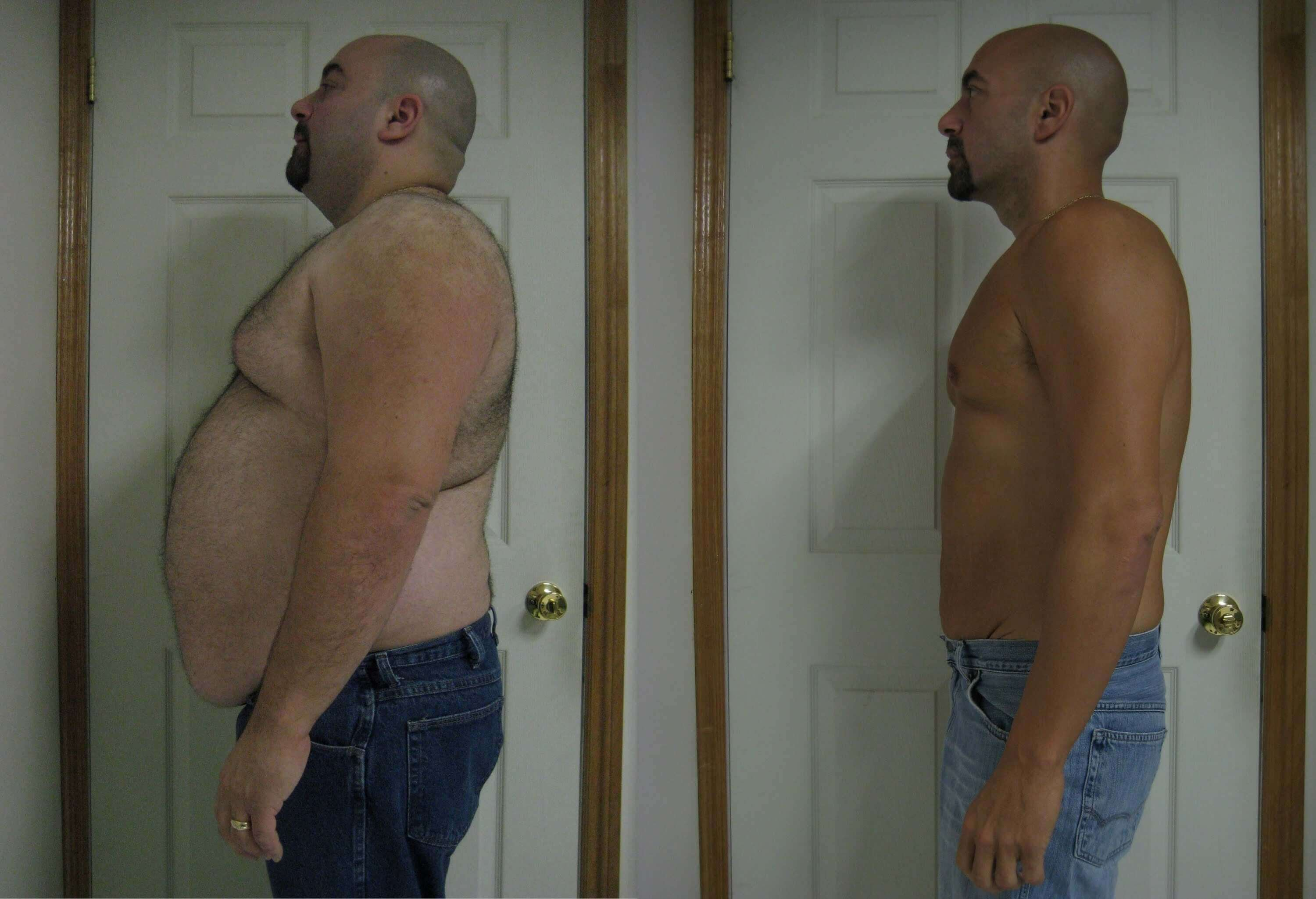 gastric bypass before and after man 1