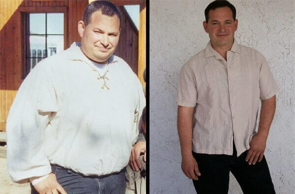 gastric bypass before and after man 2
