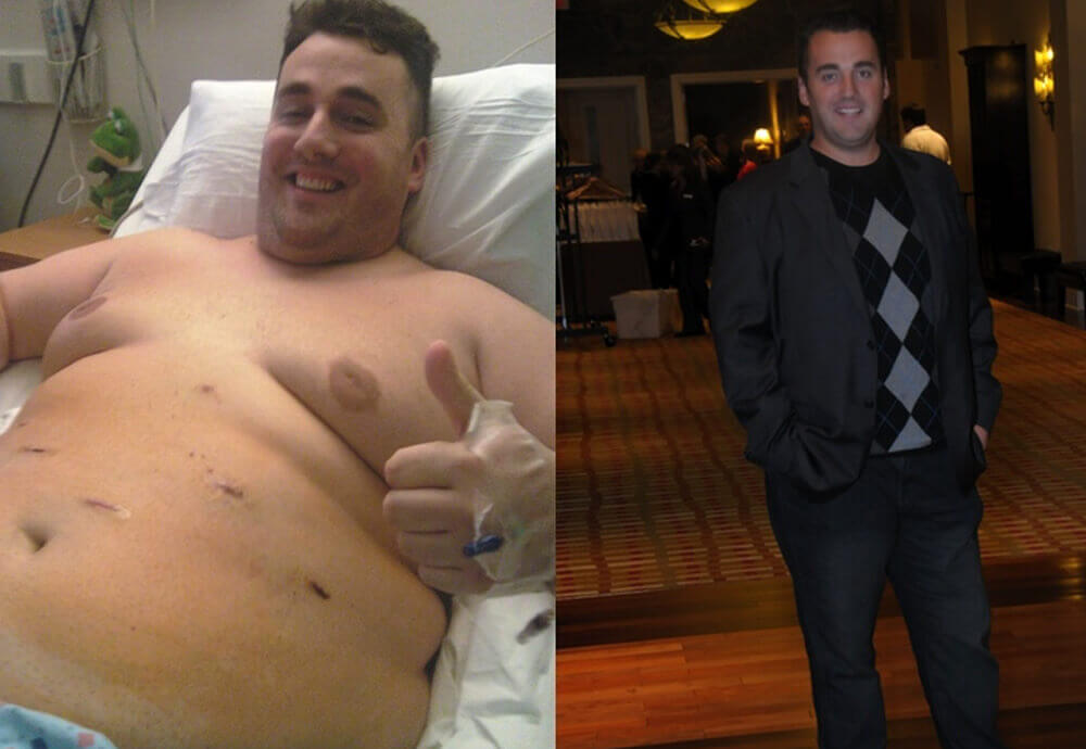 Gastric Bypass Before And After Pictures How Life Will Change