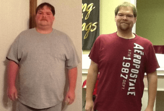 gastric bypass before and after man 5