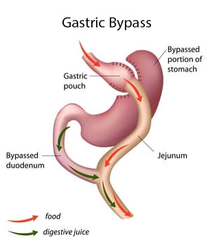 Gastric Bypass Revision Surgery 6 Options Bariatric Surgery Source