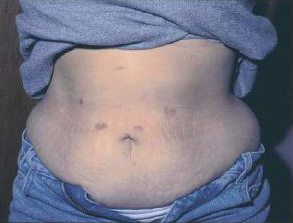 Scars From Gastric Sleeve Surgery How Your Stomach Will