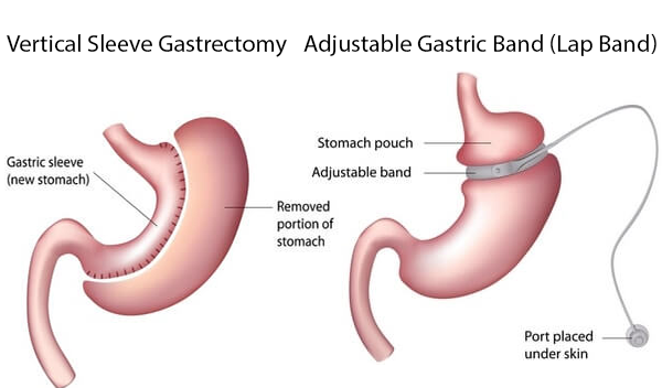 Gastric Sleeve Vs Lap-Band