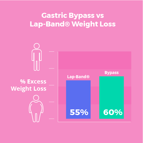 Lap Band vs Gastric Bypass