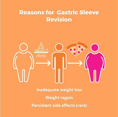 Gastric Sleeve Revision Surgery