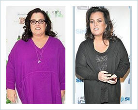 Gastric Sleeve Before after Women Celebrity 2