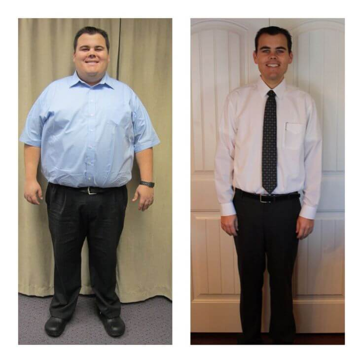 Gastric Sleeve Before after Men 3
