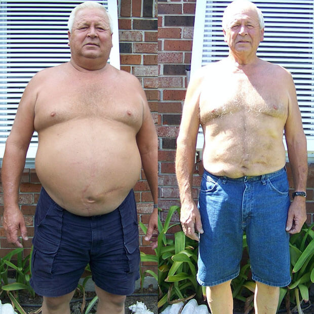 Gastric Sleeve Before after Men 4