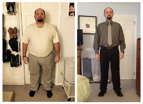 Gastric Sleeve Before after Men 5