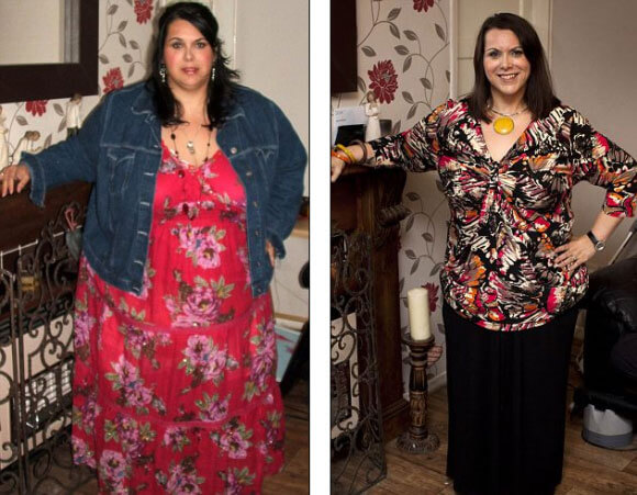 Gastric Sleeve Before after Women 3
