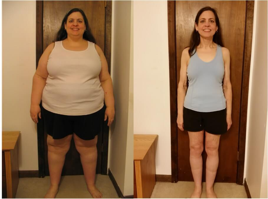 Gastric Sleeve Before And After Pictures And What You Can Expect