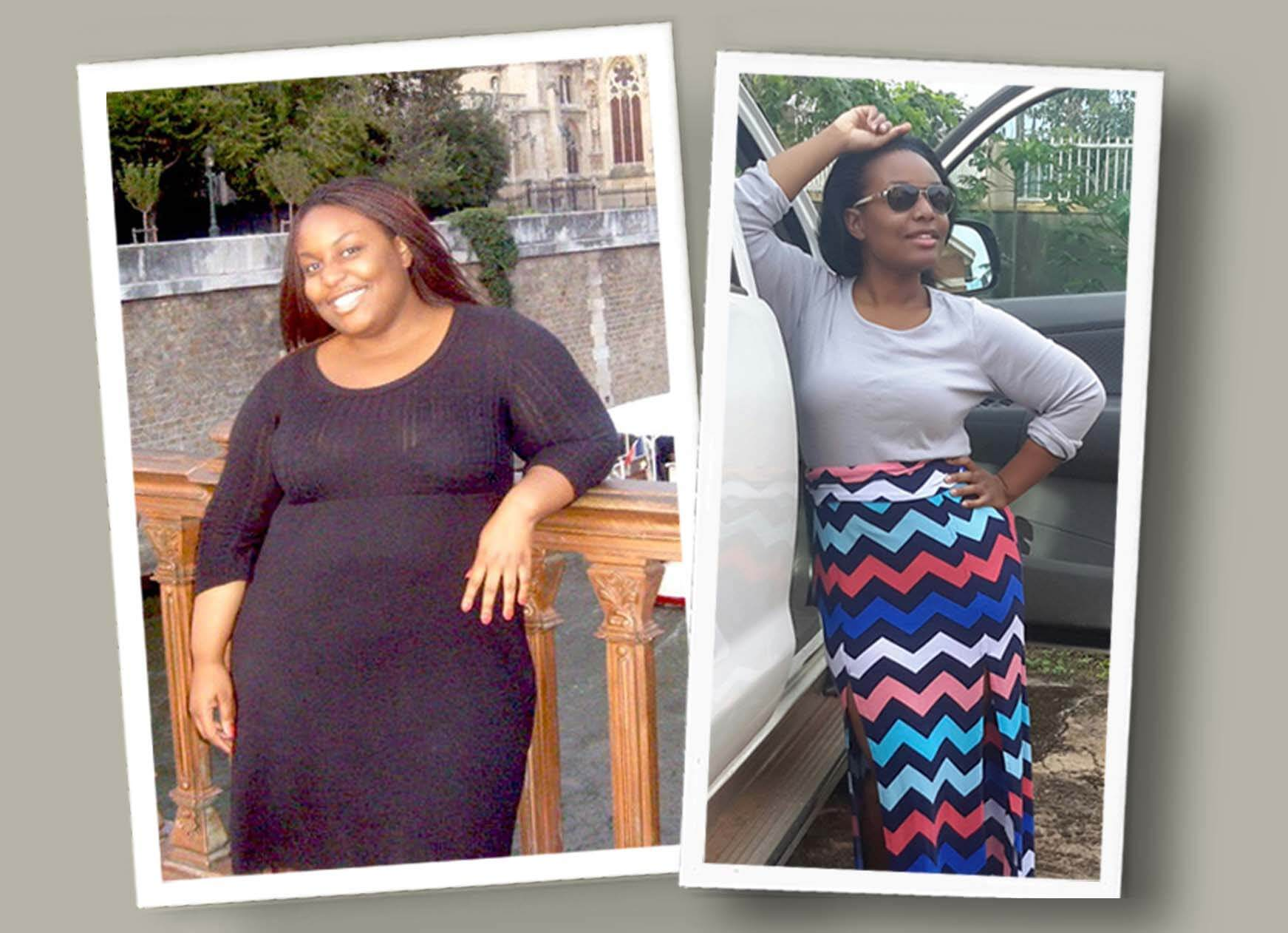 Gastric Sleeve Before after Women 7