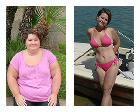 Gastric Sleeve Before And After Pictures Amp What You Can