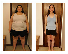 Gastric Sleeve Diet How Successful Patients Eat Before After